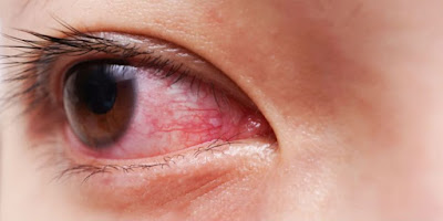 Cara Menghilangkan Mata Merah dan Berair Dengan Mudah