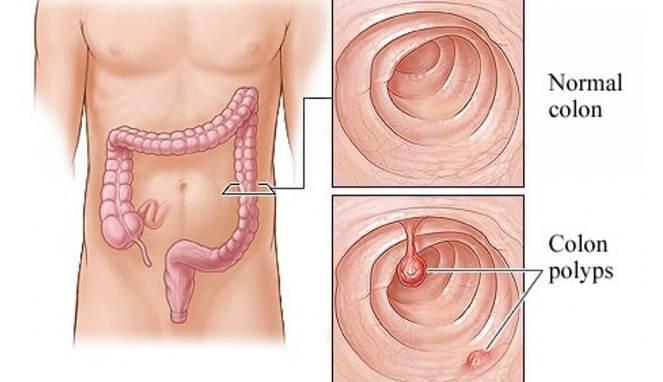 Hasil gambar untuk polip usus