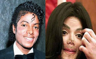 Hollywood Celebrities with Plastic Surgeries