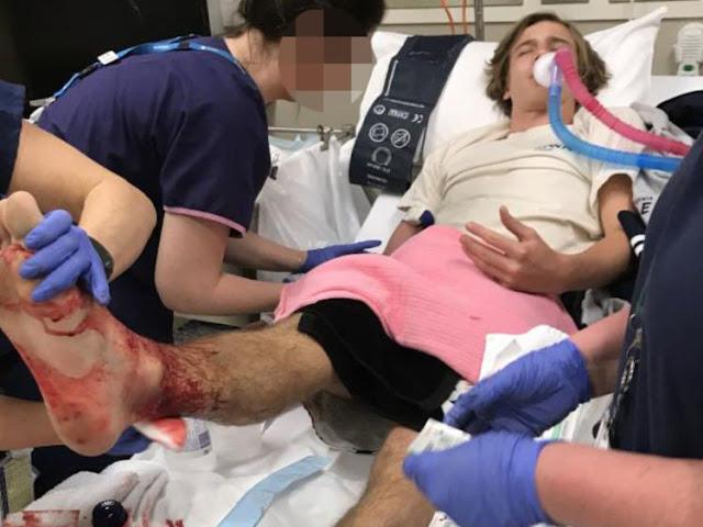Απίστευτο: Θαλάσσιοι «ψύλλοι» κατασπάραξαν τα πόδια 16χρονου
