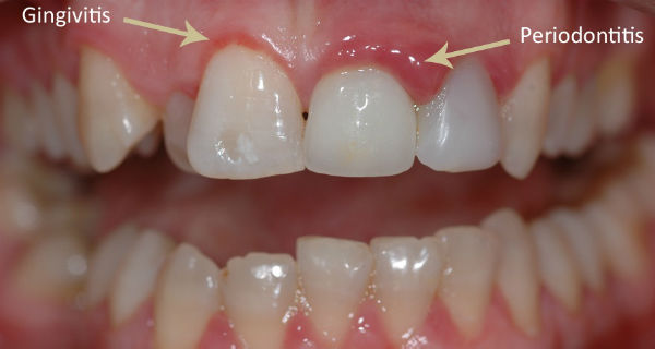 How To Treat Your Gums At Home