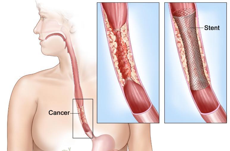 Oesophagus Cancer Life Expectancy