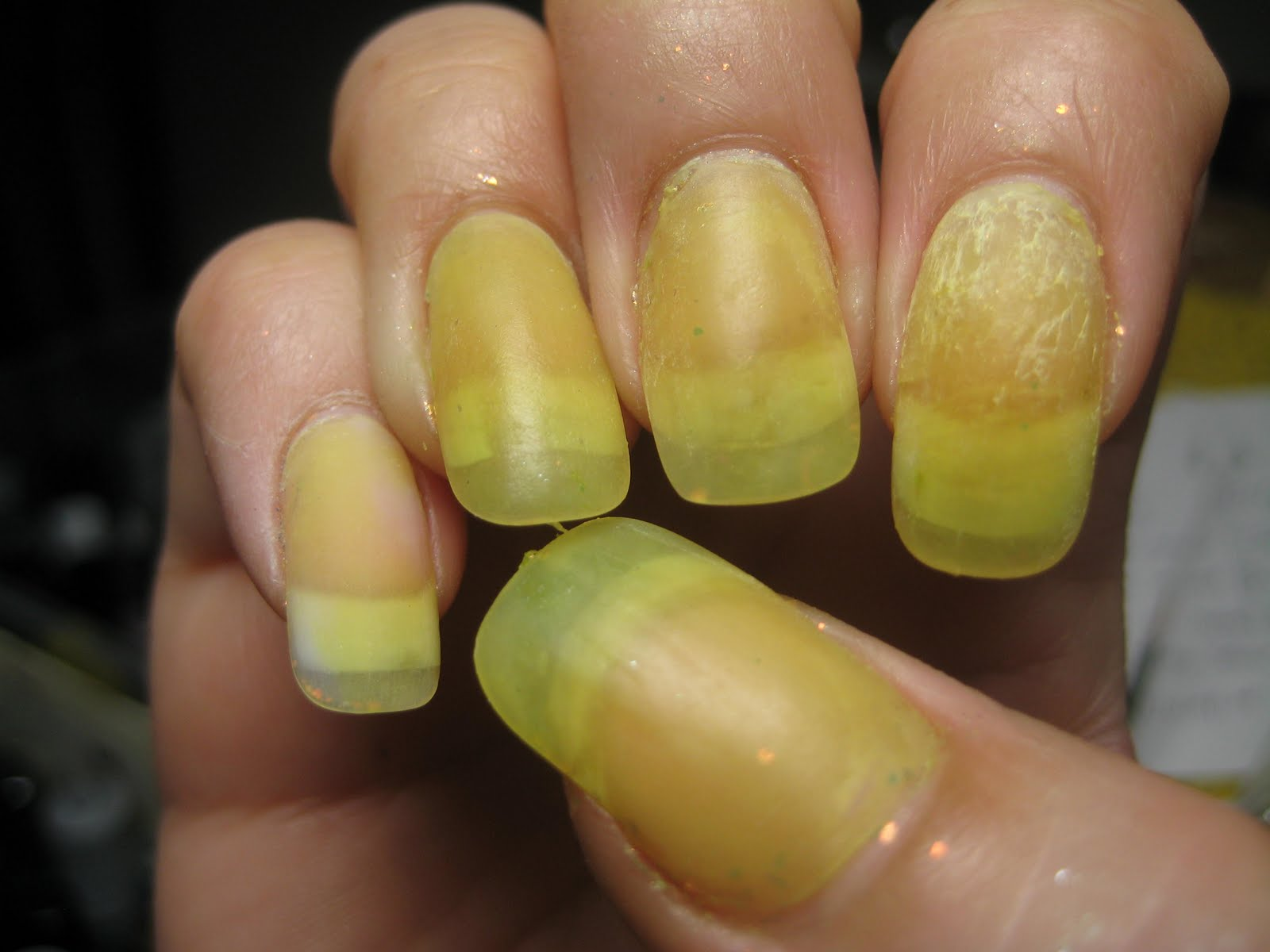 Nails Speak About Your Health