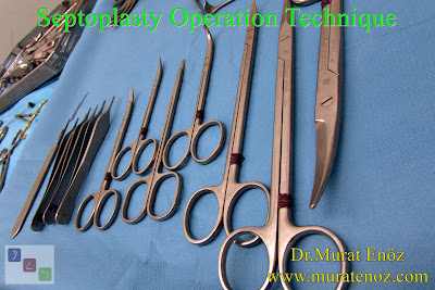 Septoplasty Operation Technique - Surgcal Technique of Septoplasty Operation