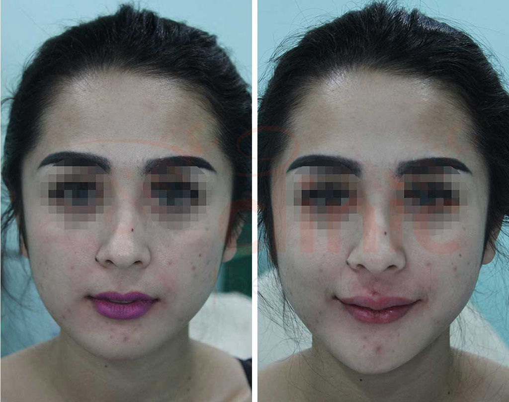 BEFORE-AFTER-Threadlift-Bibir -The Clinic Beautylosophy-Indonesia - Klinik Kecantikan Jakarta  2