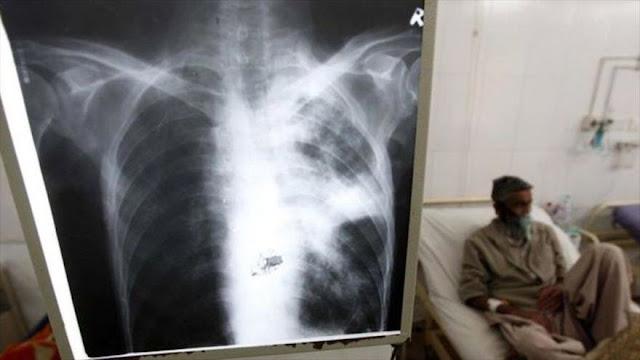 Un nuevo antibiótico puede curar tuberculosis multirresistente