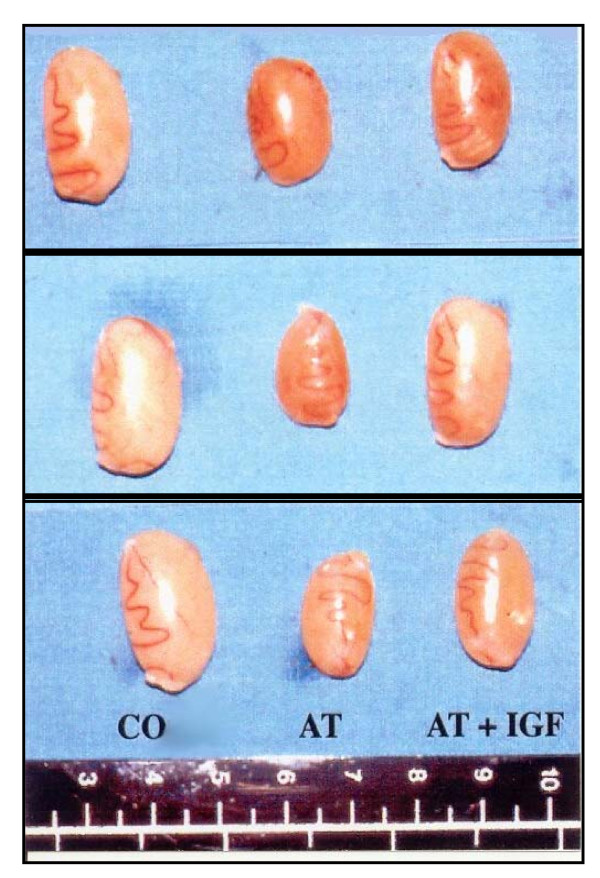 Penyebab Atrofi Testis Bilateral, Kasus Azoospermia