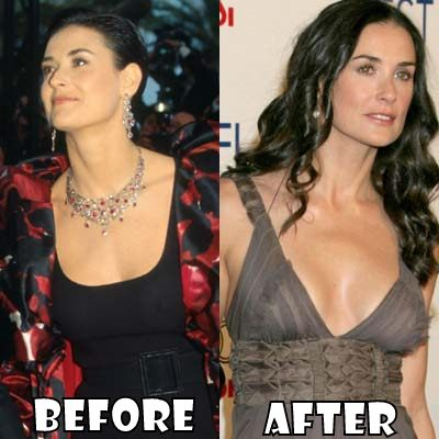 Demi Moore Plastic Surgery Before And After Nose Job And