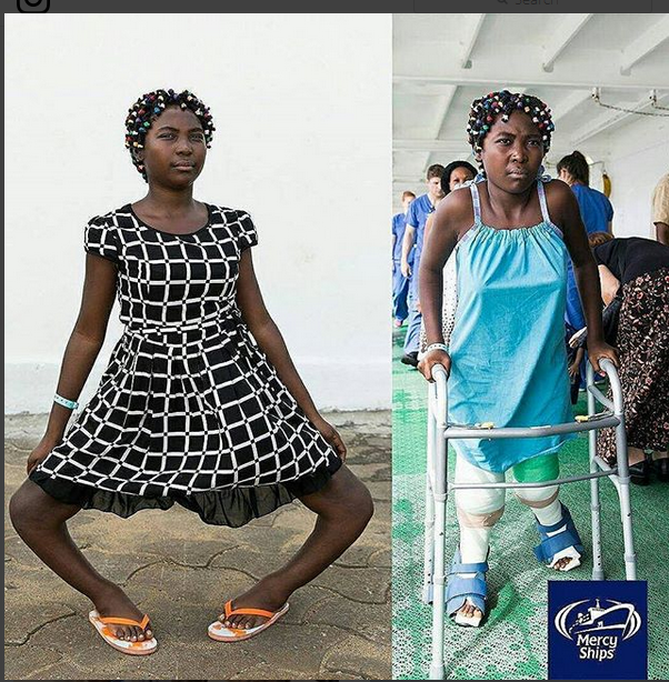 Teenage Girl With Bow Legs Undergoes Corrective Surgery. Photos