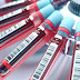 Un nuevo análisis de sangre puede predecir el riesgo de muerte a 10 años