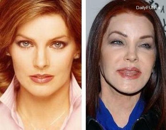 Celebrities Plastic Surgery Wikipicks