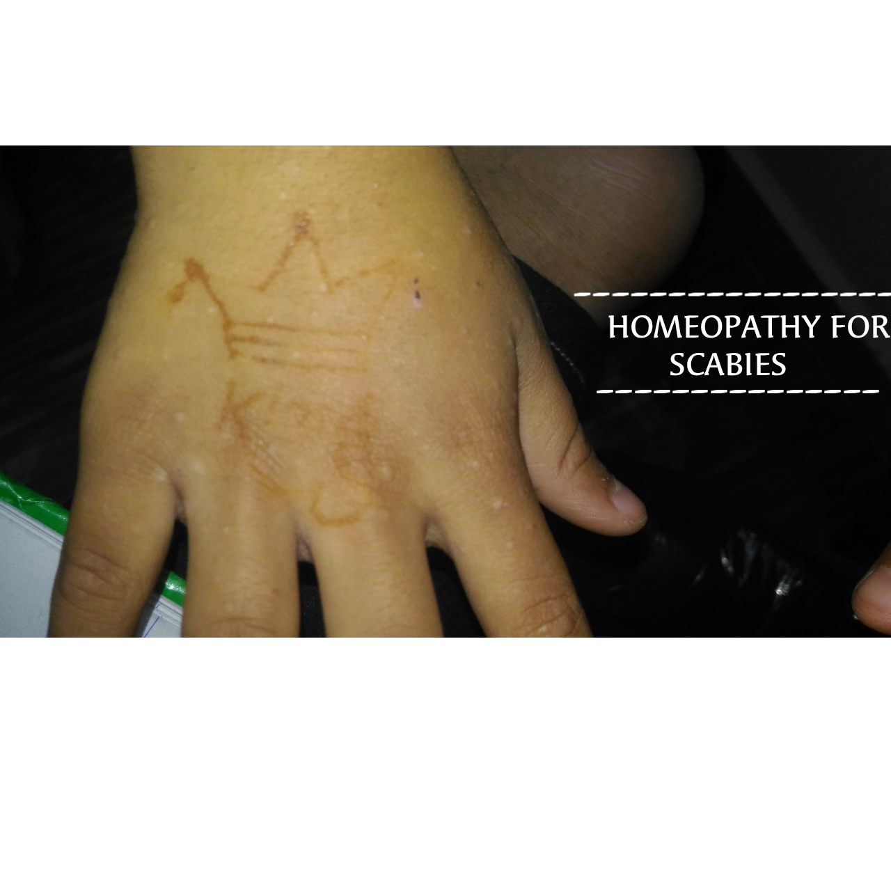 Top 4 Homeopathic Remedy For Scabies All About Scabies Homeopathy
