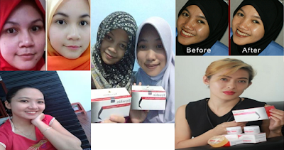 Testimoni Pengguna Cream Pemutih Wajah Liyoskin