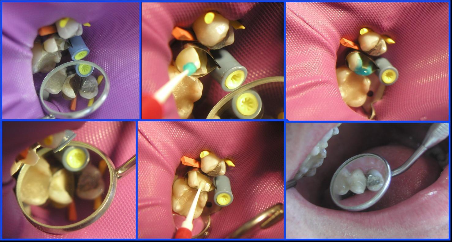 Dental materials: Glass Ionomer - Composite