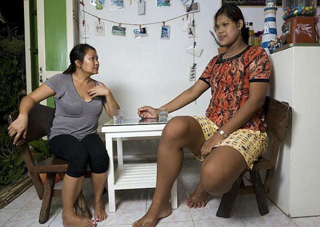 Bersyukurlah Normal, Begini Tragisnya Nasib 7 Wanita Raksasa Jalani Hidup
