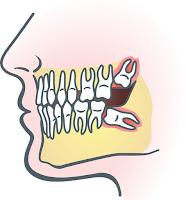 Médicaments pour la douleur Dents de sagesse