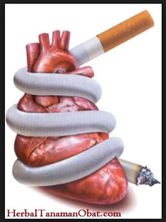 merokok, jantung, jantung koroner, karbon monoksida, kolesterol, merokok meningkatkan denyut jantung, merokok meningkatkan aterosklerosis