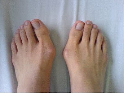 more and more inclined to the other toes Hallux Valgus Surgery - What Is Hallux Valgus?