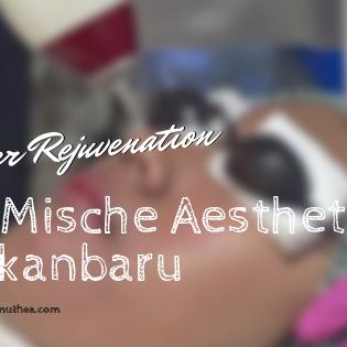 Laser Rejuvenation Di Mische Aesthetic Pekanbaru