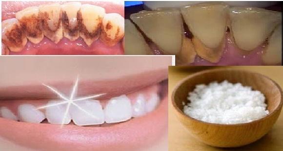 Beginilah Cara Putihkan Gigi Seperti Rawatan Di Hospital Dengan