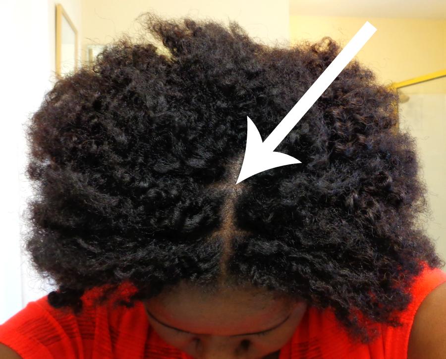 dry blood on scalp