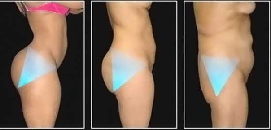 How To Get Rid Of The Fat On Your Pelvic Bone 62