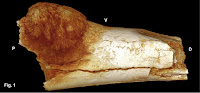 http://sciencythoughts.blogspot.co.uk/2016/08/malignant-osteosarcoma-in-17-million.html