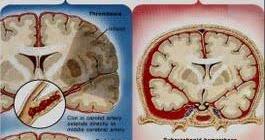 Evento vascular cerebral hemorragico