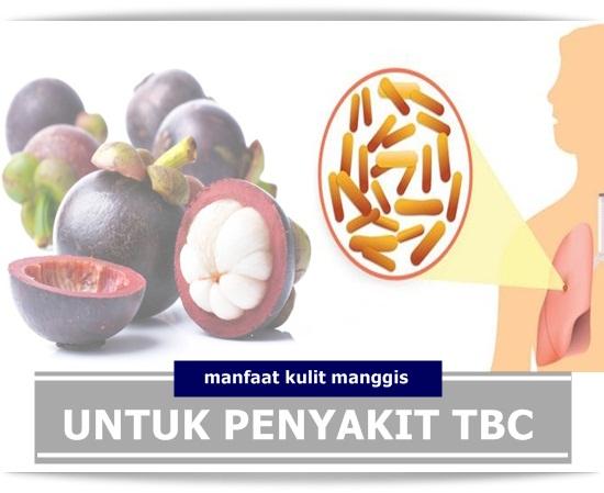 Manfaat Dan Khasiat Kulit Manggis Untuk Penderita TBC