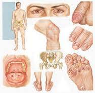 Cara Menyembuhkan Penyakit Sipilis Pada Pria