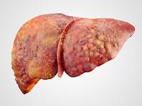 Bahaya Penyakit Liver dan Cara Mengobatinya