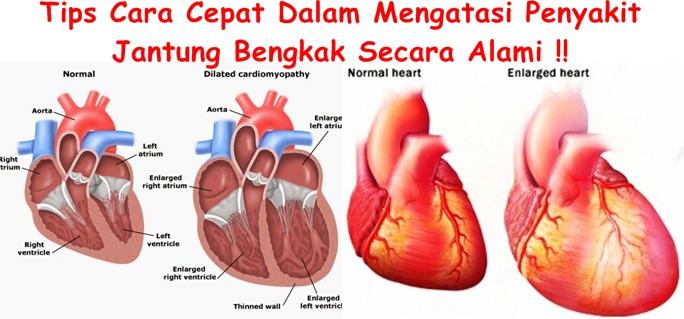 Obat Tradisional Tuntaskan Jantung Bengkak