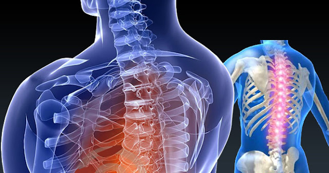 How to Prepare for Spine Surgery?