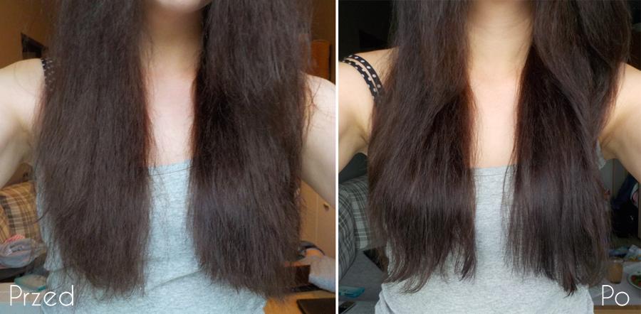 spalone wypadające włosy