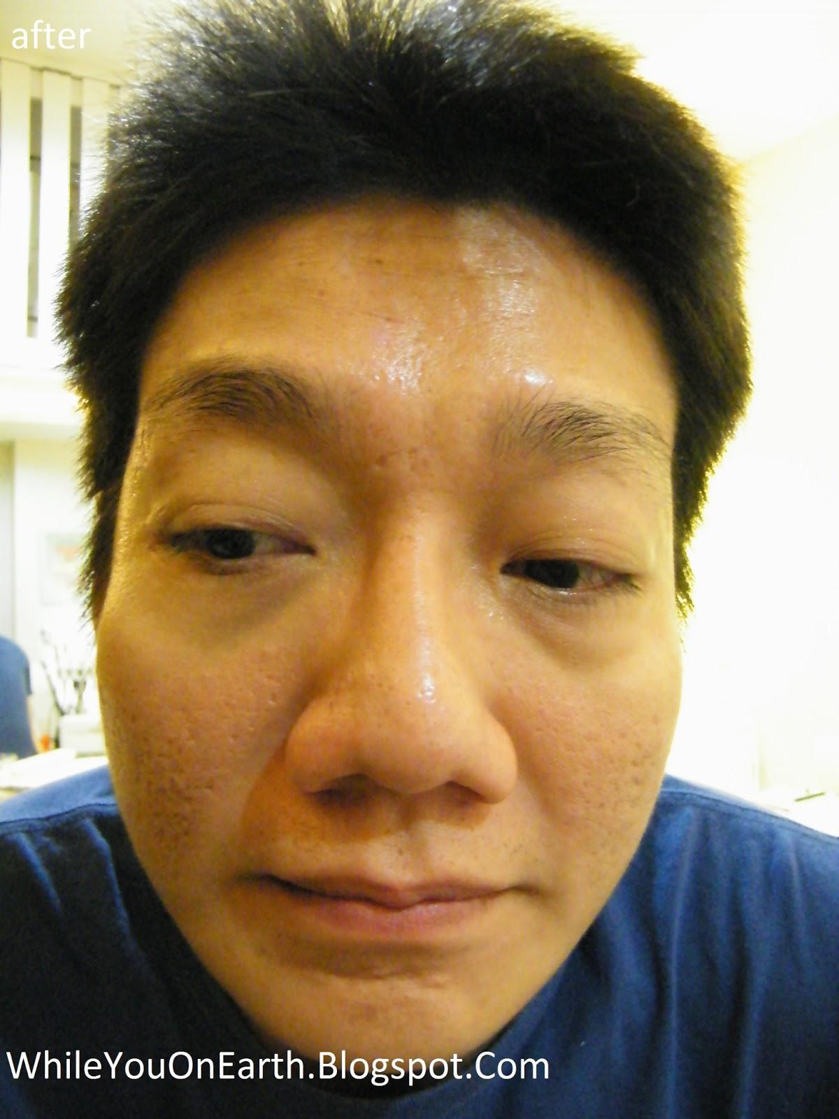 Remove Eye Bags Naturally
