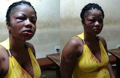 pregnant woman beaten by husband