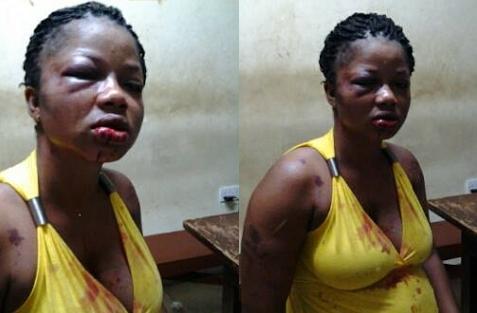 pregnant woman beaten by husband