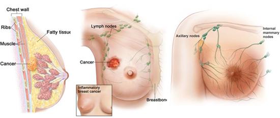 Kanker payudara yg sudah parah, herbal untuk kanker payudara, obat herbal pasca operasi kanker payudara, cara menyembuhkan kanker payudara dengan daun sirsak, kanker payudara dan obat herbalnya, kanker payudara her2 positif, www.obat kanker payudara, mengobati kanker payudara yang pecah, pengobatan kanker payudara ganas, bahan alami mengobati kanker payudara, cicak obat kanker payudara