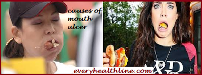 mouth-ulcer-causes-symptoms-prevention-treatment-and-complications