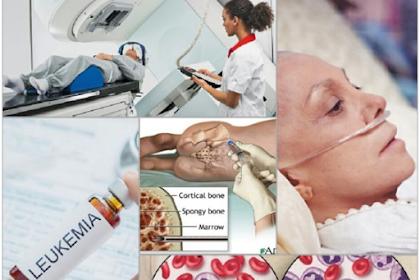 Diagnosis Kanker Darah, Leukimia dan Pengobatan Medis dan Mandiri