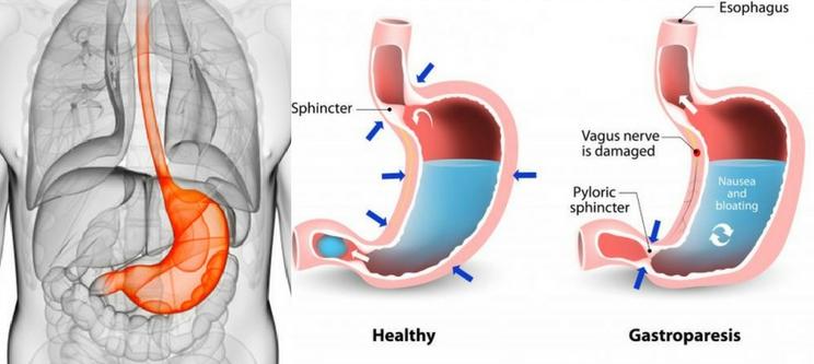 Obat Herbal Penyakit Gastroparesis