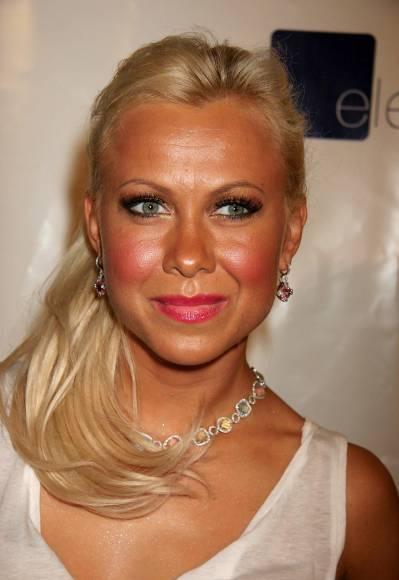 Did Oksana Baiul Has Plastic Surgery Before And After
