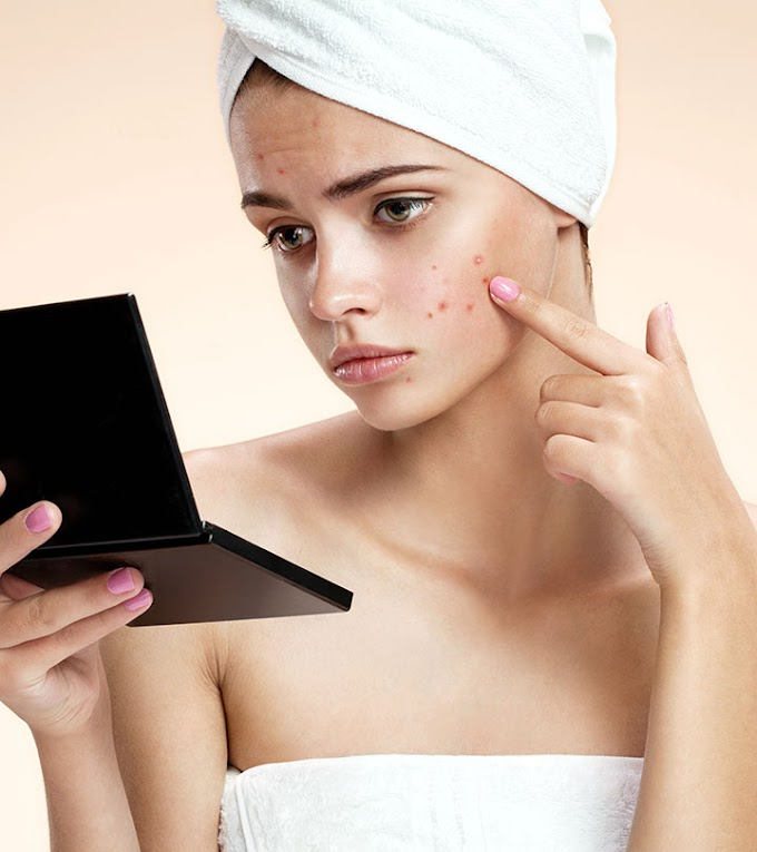 4 Home Remedies to Get Rid of Acne Overnight