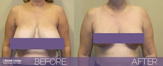 Breast+Reduction Reduce a Big Bust!Other