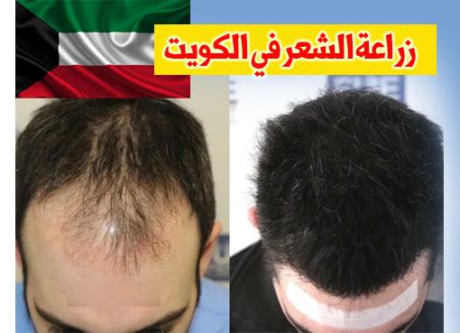 عيادات زراعة الشعر في الكويت