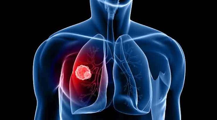 Lung disease: Why it is still a burden