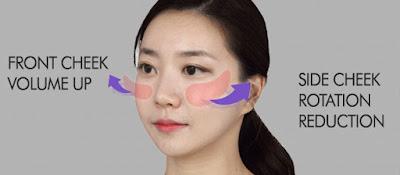 Wonjin 3D cheekbone reduction