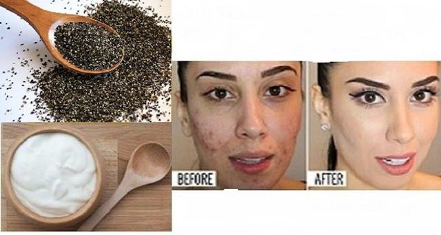 Mezclar estos dos ingredientes y ver lo que sucede a su piel después de unos minutos!