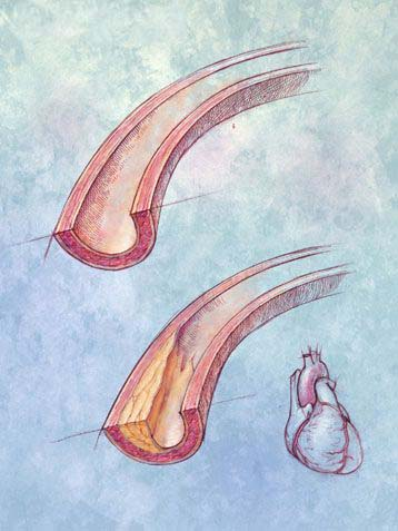 Latihan contoh Soal dan Jawaban Sistem Peredaran Darah
