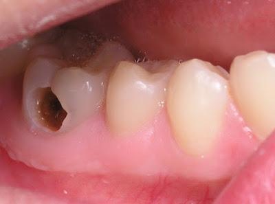 Top 5 nguyên nhân gây sâu răng- căn bệnh phổ biến ở nước ta